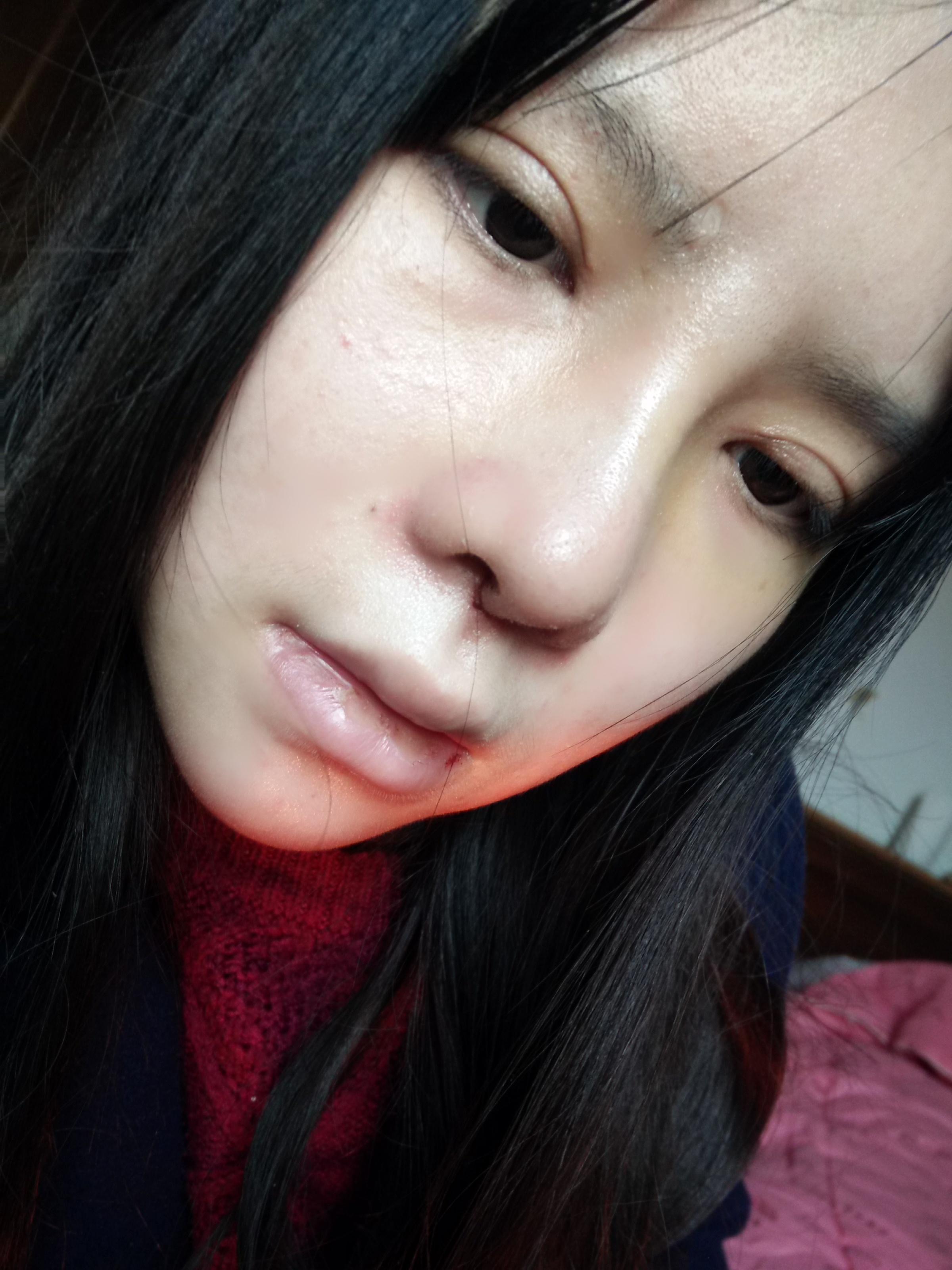 硅胶假体植入隆鼻+鼻翼缩小+肥厚鼻尖整形