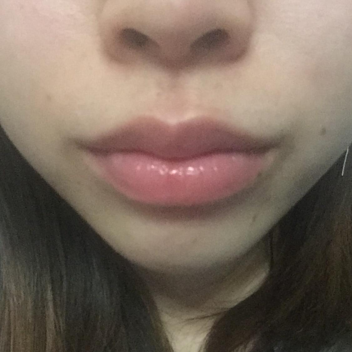 玻尿酸注射丰唇