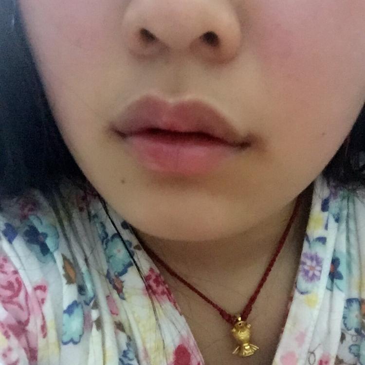 丰唇珠➕嘴角上提 广州市荔湾区人民医院