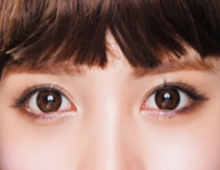 【埋线双眼皮】埋线双眼皮,自然无痕的双眼皮术
