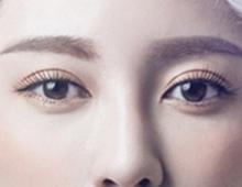 【韩式三点双眼皮】S线翘睫媚眼,韩式三点定位