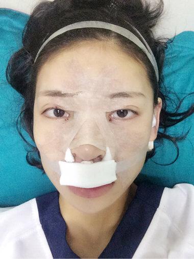 鼻综合整形+玻尿酸填充额头+玻尿酸填充太阳穴
