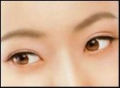 【双眼皮】 双眼皮修复成功率大吗