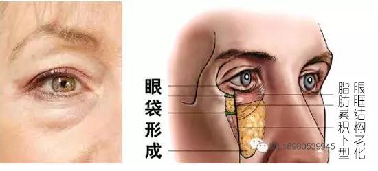 眼袋形成图
