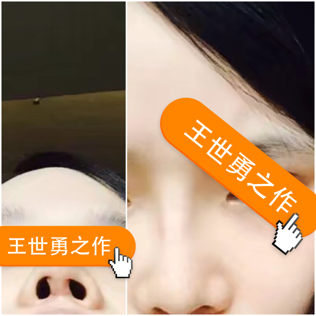 隆鼻失败修复