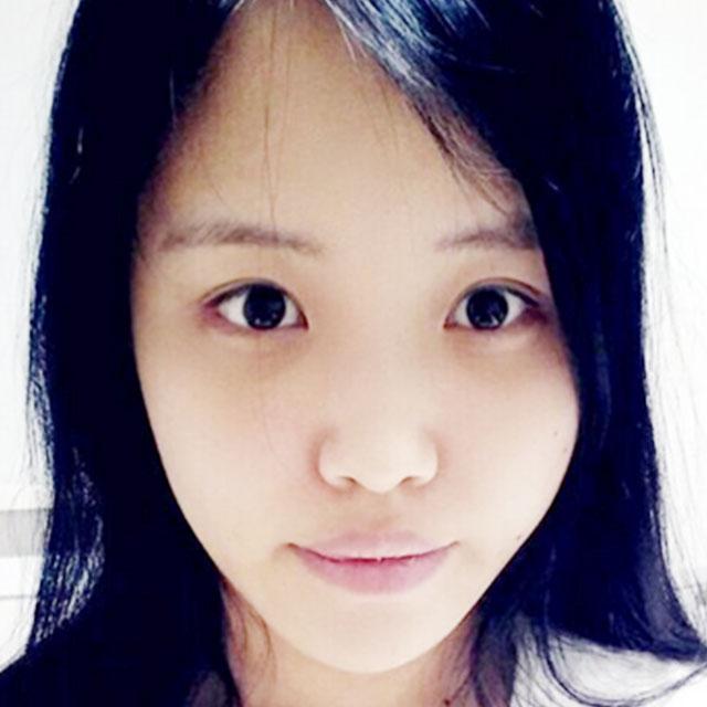 韩式双眼皮+开外眼角+面部脂肪填充+V脸