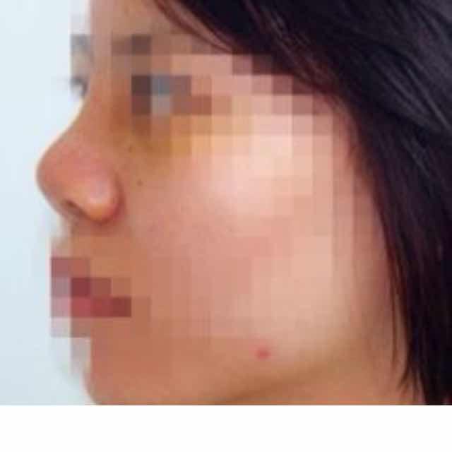 硅胶假体植入隆鼻+自体软骨移植隆鼻+鼻翼缩小